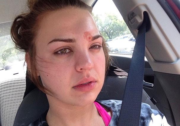 Katie Wright contraiu uma celulite infecciosa após uso de um lápis de sobrancelha (Foto: Reprodução/Twitter)