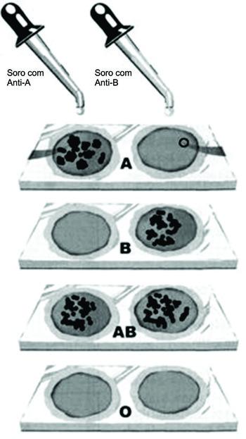 Figura 1:Pode ser observado aglutinação nos grupo A e AB ao adicionar o soro anti-A e aglutinação do grupo B e AB no soro anti-B (Foto: Reprodução/Colégio Qi)