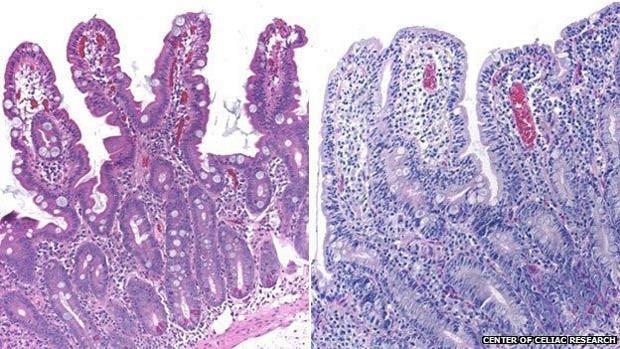 Vilosidades intestinais com aparência normal (esq.) e com as características de um celíaco  (Foto: BBC)