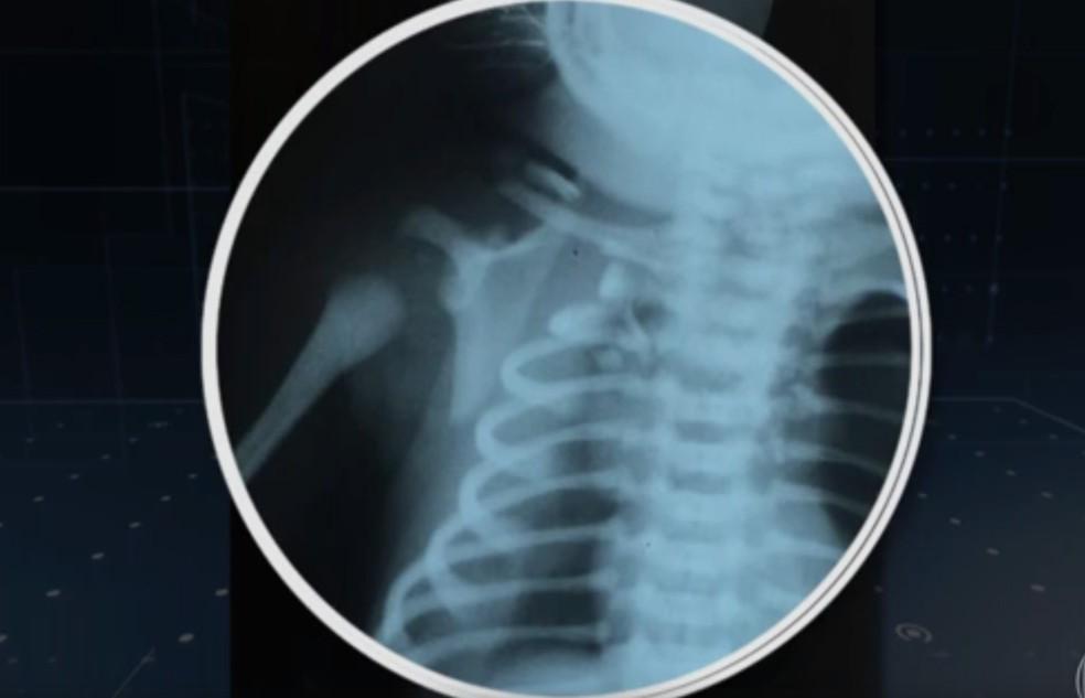 Imagem de exame mostra lesões no organismo de bebê atingido por bala perdida na barriga da mãe (Foto: Reprodução/TV Globo)