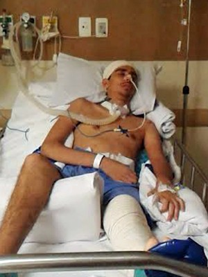 Flávio Pala ficou internado na UTI do Hospital de Base (Foto: Flávio Pala/Arquivo Pessoal)