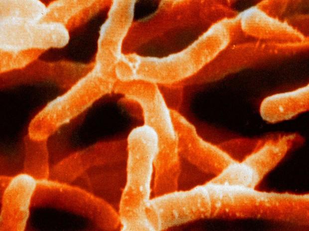 Actinobactérias, micróbios de convivência benéfica que são afetados pelo uso inadequado de antibióticos (Foto: Graham Colm/CC)