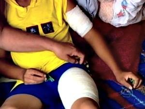 Criança teve ferimentos no braço e perna após ataque de pit bull (Foto: Reprodução/ TVCA)
