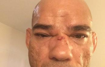 Curtinhas: Evangelista Cyborg passa bem após cirurgia de sete horas