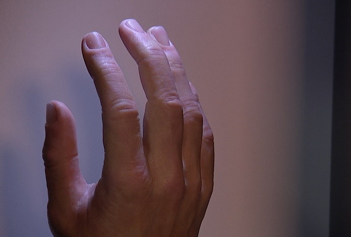 protese (Foto: Reprodução / TV TEM)