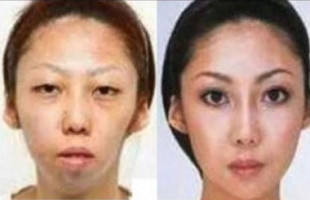 Chinês processou a esposa após descobrir que ela havia feito plástica. (Foto: Reprodução)