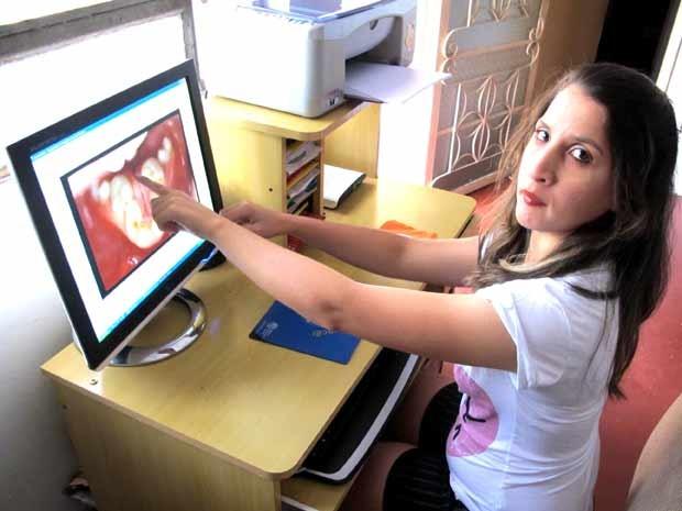 Estudante Auristela Viana da Silva, que nasceu sem a língua, mostra como era a parte interna de sua boca antes das duas cirurgias para alargar a mandíbula (Foto: Lucas Nanini/G1)
