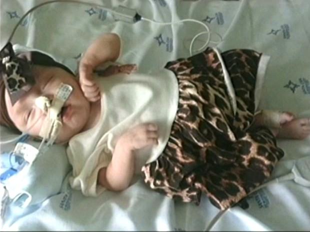 Lanah está na UTI desde que nasceu, segundo o pai  (Foto: Reprodução RBS TV)
