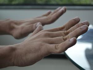Jucimar consegue envergar os dedos com facilidade por causa dos problemas do coração , espírito santo (Foto: Juirana Nobres/ G1)
