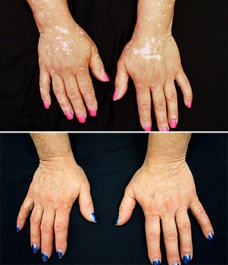 Imagem mostra as mãos de paciente antes e depois do tratamento, que durou cerca de cinco meses. Medicamento ajudou a reduzir significativamente as manchas provocadas pelo vitiligo (Foto: Dr Brett King/Yale University/Jama Dermatology)