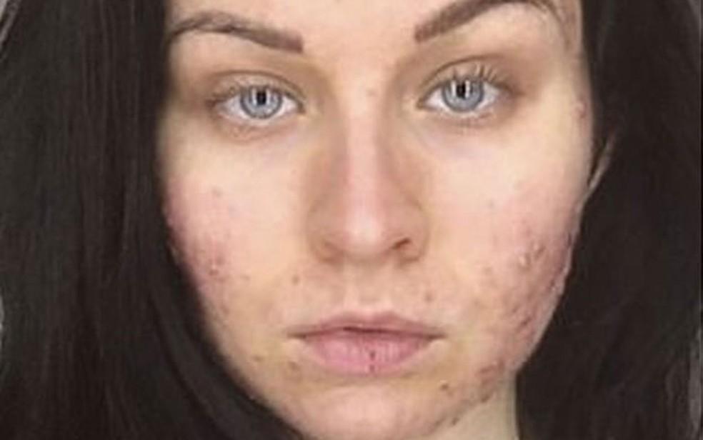 Pele e olhos mais secos é um dos efeitos do medicamento indicado para casos grave de acne (Foto: Judith Donald)