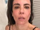 Luciana Gimenez posta foto com rosto vermelho: 'Esfolada'