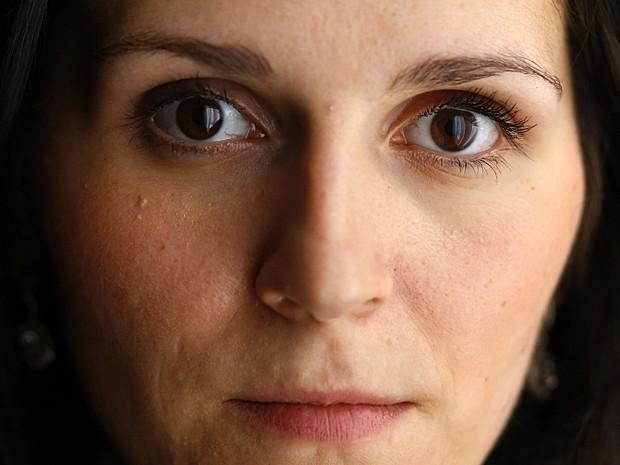 Mulher acredita que seja a única pessoa no mundo a apresentar esse tipo de transtorno (Foto: Marko Djurica/Reuters)