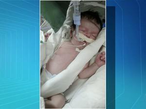 Bebê morre à espera de cirurgia (Foto: Reprodução/TV Anhanguera)