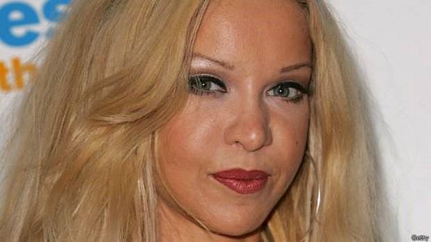 A top model Alicia Douvall sofre do trastorno disfórmico corporal  (Foto: Getty/BBC)