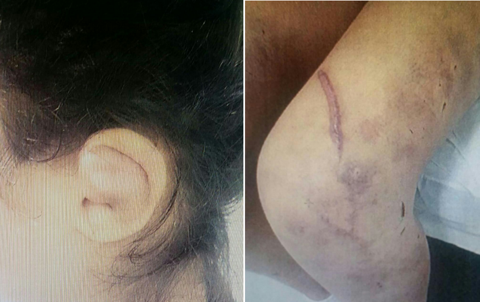 Jovem tinha marcas de agressão em todo o corpo (Foto: Polícia Civil/Divulgação)