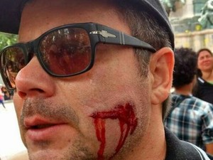 Policial Civil é atingido por bala de borracha (Foto: Polícia Civil)