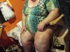 Com obesidade mórbida, mulher precisa de ajuda para respirar no RS