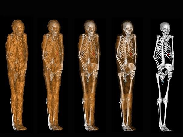 Por meio de tomografia computadorizada, arqueólogos conferem múmias em detalhes (Foto: Divulgação/ Jorge Lopes)