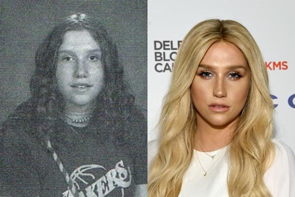 Kesha (Foto: Reprodução/Getty Images)