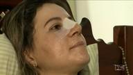 Saúde + Beleza: pessoas que enfrentaram cirurgia para aumentar a autoestima