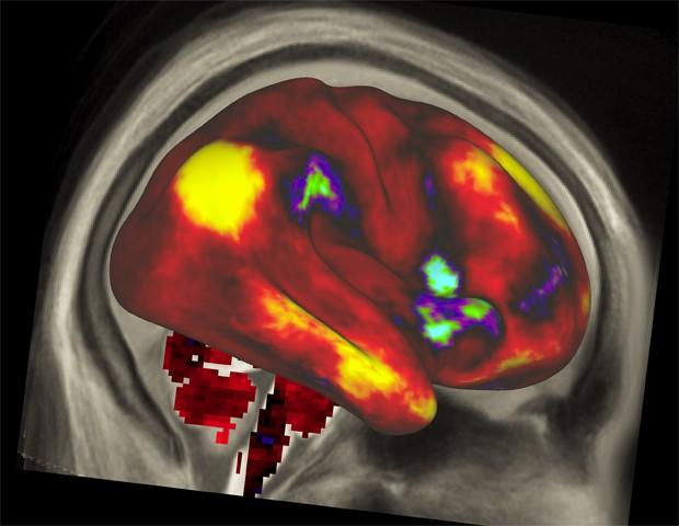 Imagem de atividade cerebral registrada por pesquisadores (Foto: NIH/Divulgação)