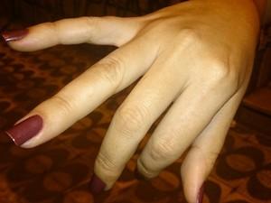 Professora agredida diz que não consegue mexer os dedos (Foto: LG Rodrigues / G1)