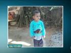 Menino de 3 anos atacado por cães na Zona Oeste vai passar por cirurgia