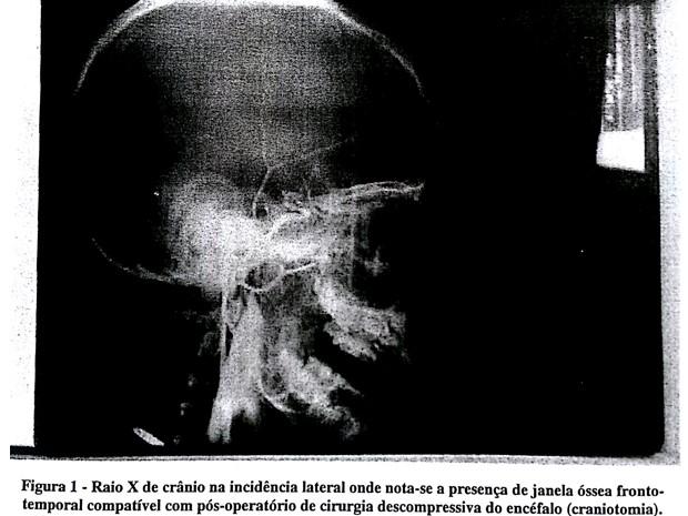 Arteriografia mostra atividade cereral no garoto Paulinho Pavesi (Foto: Reprodução Documento)