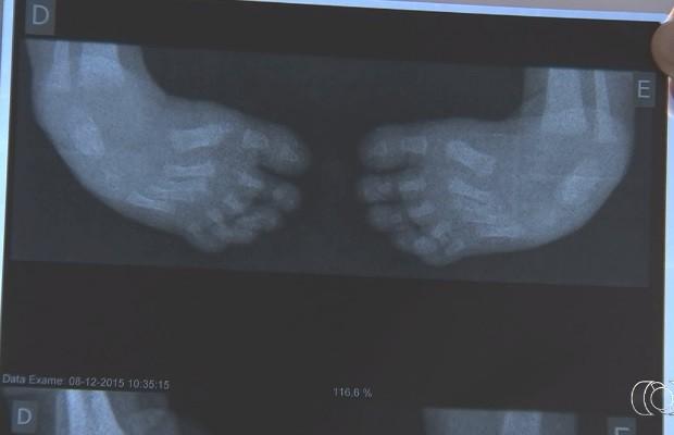 Pais buscam tratamento para bebê que nasceu com os pés tortos, em Goiás (Foto: Reprodução/TV Anhanguera)
