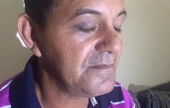 """Ex-goleiro tem casa e carro roubados no Acre: """"Só pensava na minha vida"""""""