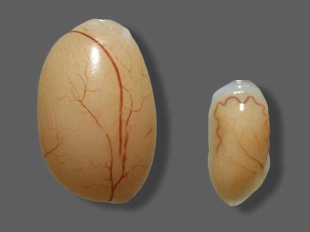 À esquerda, testículo de camundongo saudável, à direita, testículo de camundongo após uma infecção pelo vírus da zika  (Foto: Prabagaran Esakky)