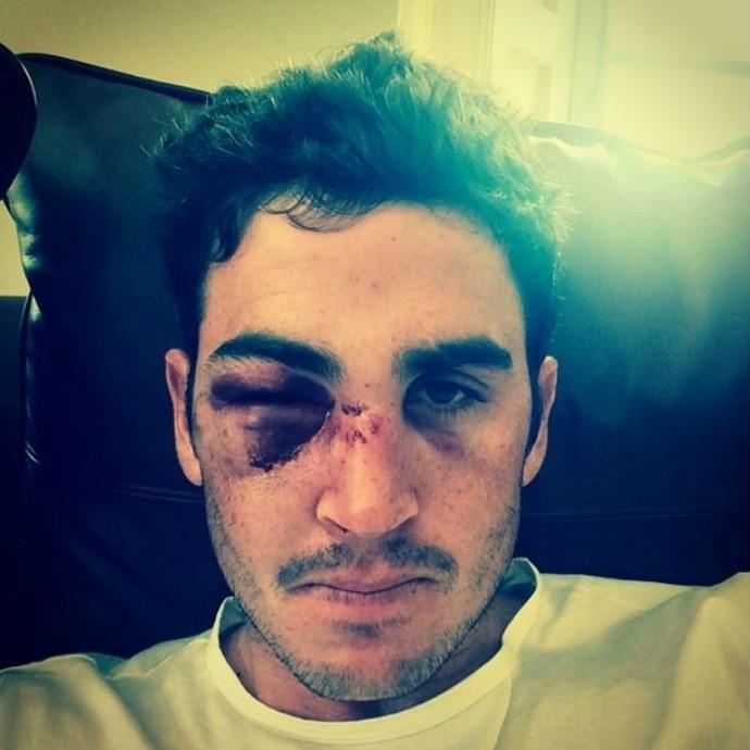 Craig Kieswetter jogador de criquete quebra nariz (Foto: Reprodução/Instagram)