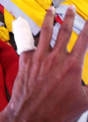 Com problema na mão esquerda, Edivandro só volta aos treinos na próxima semana (Foto: Edivandro Lima/Arquivo Pessoal)