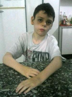 Bernardo foi diagnosticado com epilepsia ainda criança (Foto: Arquivo pessoal / Susicler Betega)