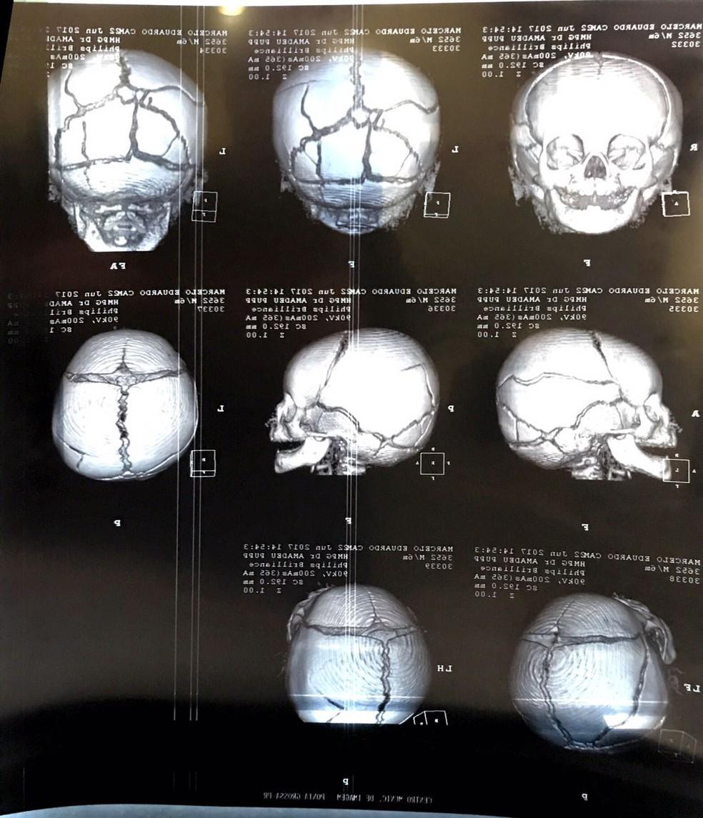 Bebê de seis meses é internado com várias fraturas no crânio; suspeita é de agressão (Foto: Reprodução/RPC)