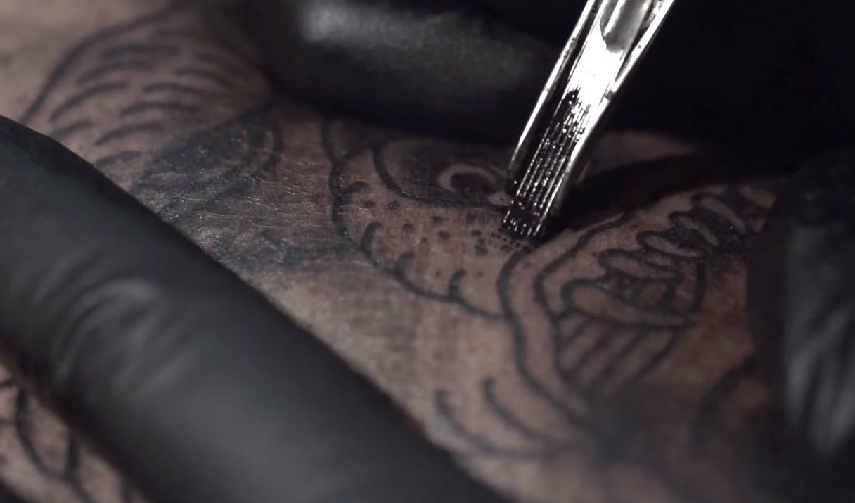 Agulha na pele