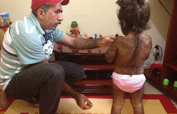Pai conta que também nasceu peludo e acredita que problema seja genético (Foto: Fernanda Borges/G1)