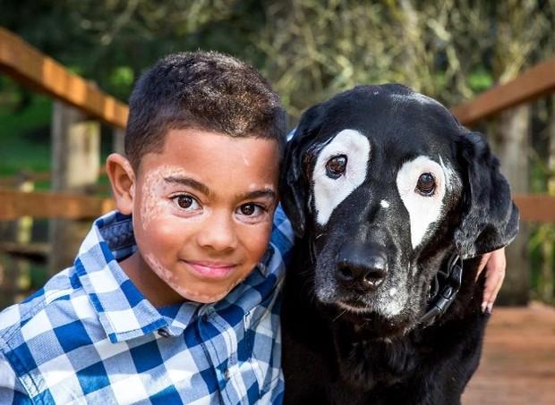 vitiligo (Foto: Reprodução/Instagram)