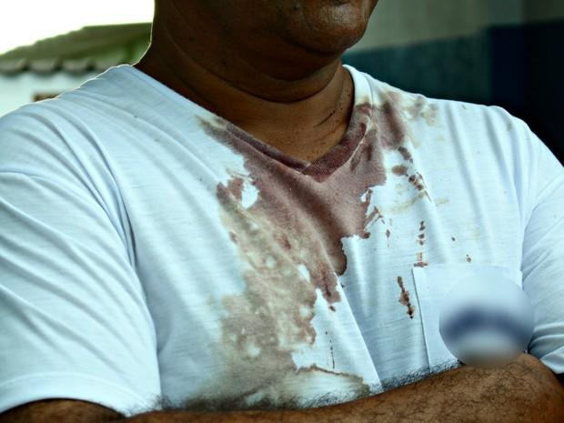 Vítima foi agredida durante assalto em Campo Grande (Foto: Luan Saraiva / G1 MS)