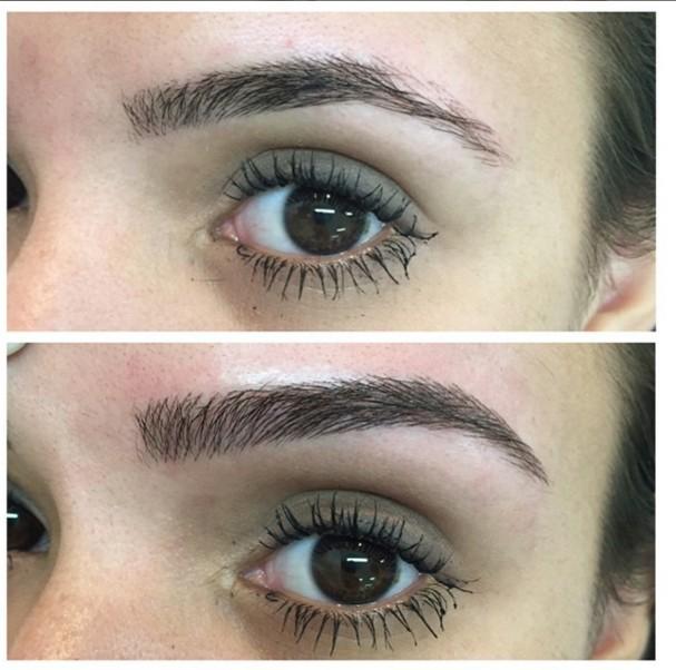 Antes e depois (Foto: Reprodução/ Instagram)