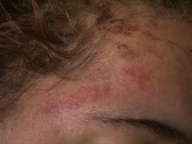 Travesti ficou com ferimentos na cabeça e outras partes do corpo. Ela apanhou até desmaiar (Foto: Reprodução/TV Globo)