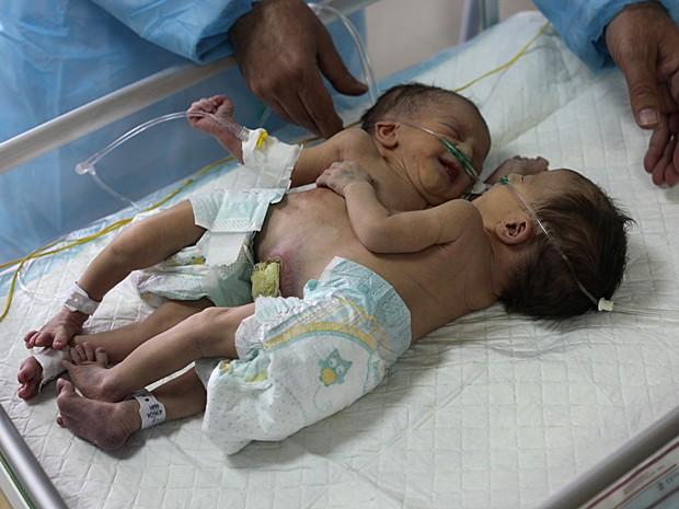 Siamesas Iman e Amani nasceram na Cisjordânia e agora aguardam decisão sobre cirurgia de separação (Foto: Hazem Bader/AFP)