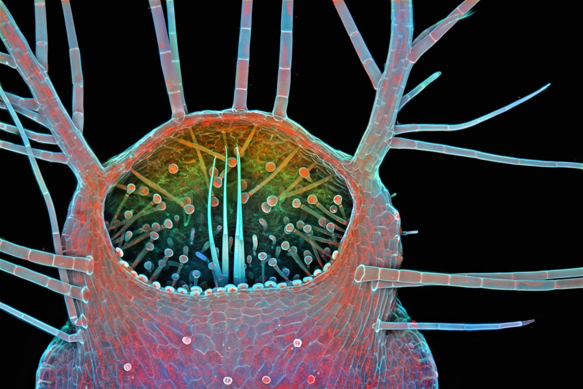 (Foto: Igor Siwanowicz/Nikon Small World)
