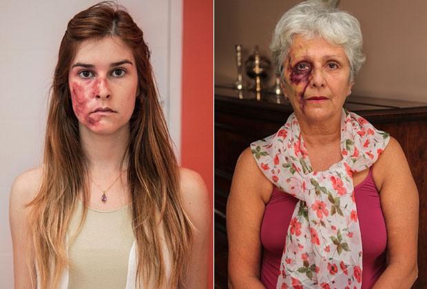 """Projeto fotográfico """"Entre Nós"""" retrata mulheres vítimas de violência doméstica"""