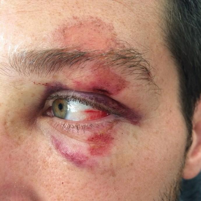 Steven LoBue Scar acidente high diving plataforma (Foto: Reprodução/Instagram)