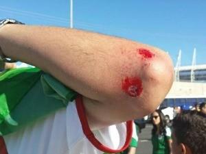 Um brasileiro foi ferido após agressão de mexicanos (Foto: Diana Vasconcelos/G1)