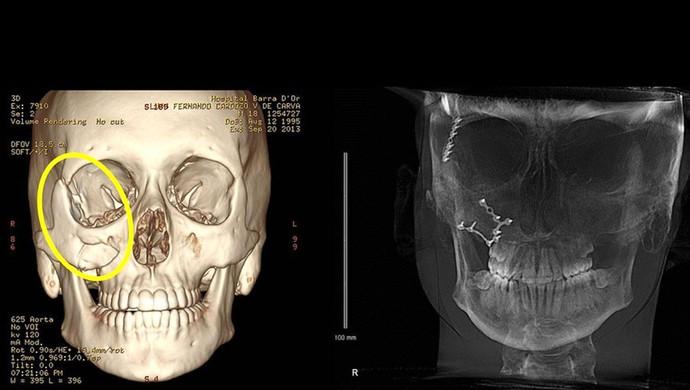 Verdini zagueiro Botafogo recuperação  fratura do osso zigomático (Foto: Divulgação)
