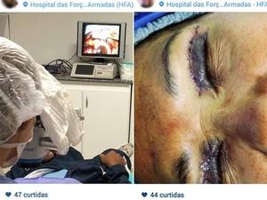 Na primeira imagem, oftalmologista faz cirurgia para retirada de membrana de olho em Brasília; na segunda, paciente está com os olhos ainda inchados após plástica nas pálpebras (Foto: Instagram/Reprodução)