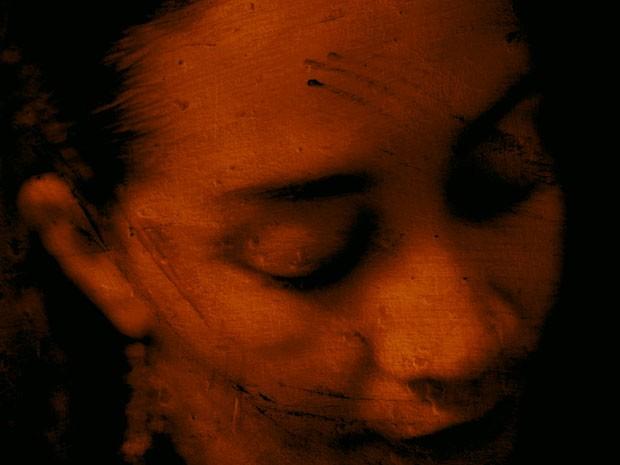 Cicatriz no rosto Bahia ACBEU (Foto: Divulgação)